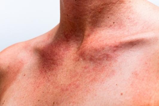 como-identificar-e-tratar-a-alergia-na-pele-1-640-427